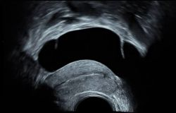 GEHC-gynecological-ultrasound_High_frequency
