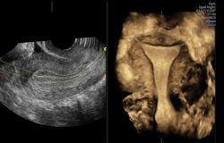 GEHC-gynecological-ultrasound_OmniView