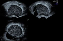 GEHC-gynecological-ultrasound_ovarian_mass
